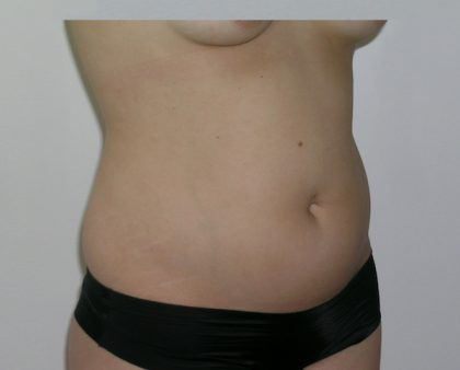 Liposuction Before & After Patient #1110