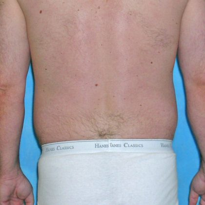 Liposuction Before & After Patient #1155