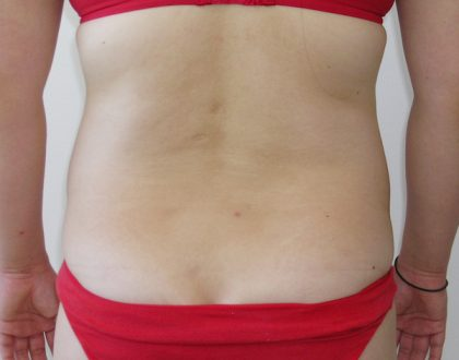 Liposuction Before & After Patient #1158