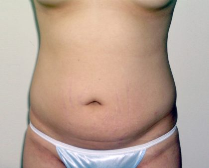 Liposuction Before & After Patient #1166