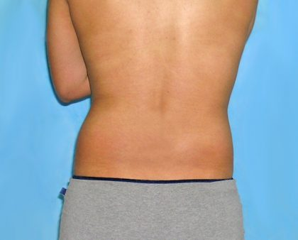 Liposuction Before & After Patient #1178