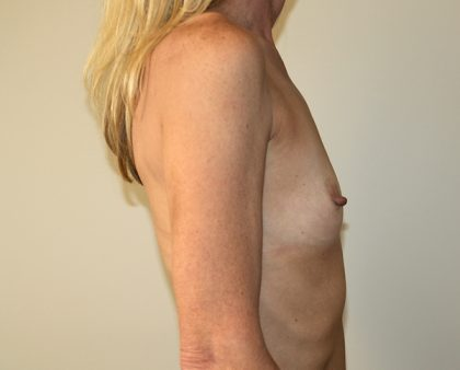 Breast Augmentation Before & After Patient #1544