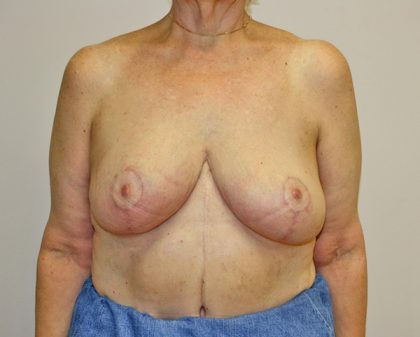 Breast Reduction Before & After Patient #961