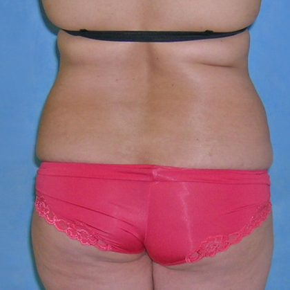 Liposuction Before & After Patient #1205