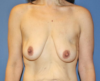 Breast Augmentation Before & After Patient #1674