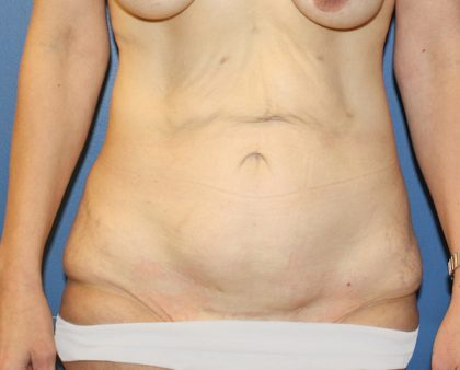 Tummy Tuck Before & After Patient #613
