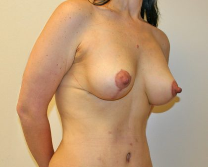 Breast Lift Before & After Patient #855