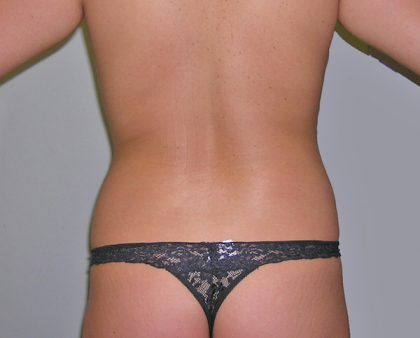 Liposuction Before & After Patient #1223