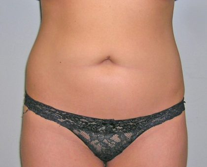Liposuction Before & After Patient #1226
