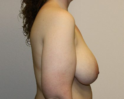 Breast Reduction Before & After Patient #1003