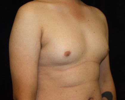 Male Breast Reduction Before & After Patient #1247