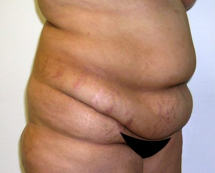 Tummy Tuck Before & After Patient #542