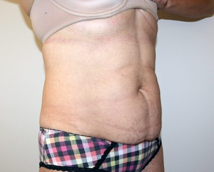 Tummy Tuck Before & After Patient #705