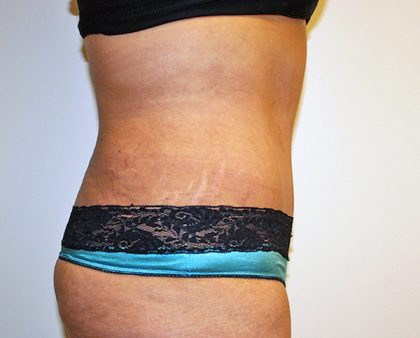 Tummy Tuck Before & After Patient #570