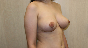 Breast Reduction Before & After Patient #876