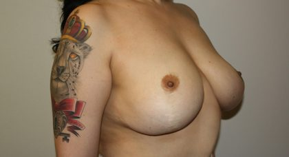 Breast Lift Before & After Patient #795