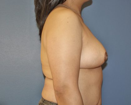 Breast Reduction Before & After Patient #968