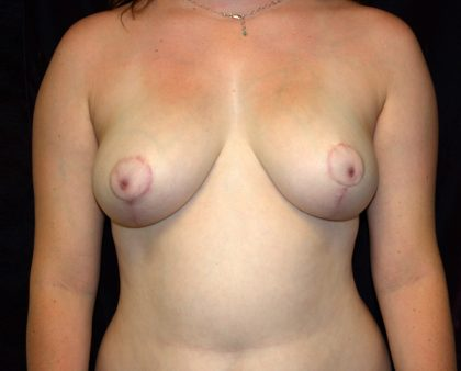 Breast Reduction Before & After Patient #905