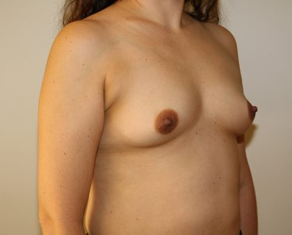 Breast Augmentation Before & After Patient #1551