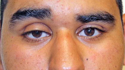 Eyelid Surgery Before & After Patient #733