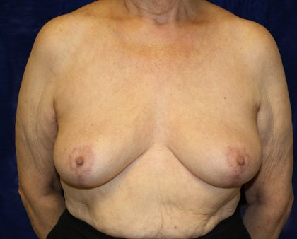 Breast Reduction Before & After Patient #954