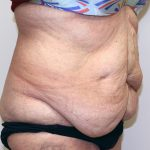 Tummy Tuck Before & After Patient #656