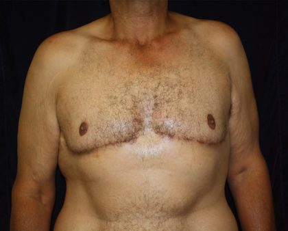 Male Breast Reduction Before & After Patient #1261