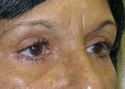 Eyelid Surgery Before & After Patient #750