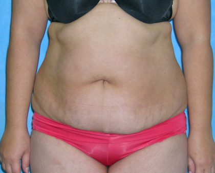 Tummy Tuck Before & After Patient #584