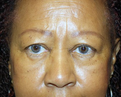 Eyelid Surgery Before & After Patient #764