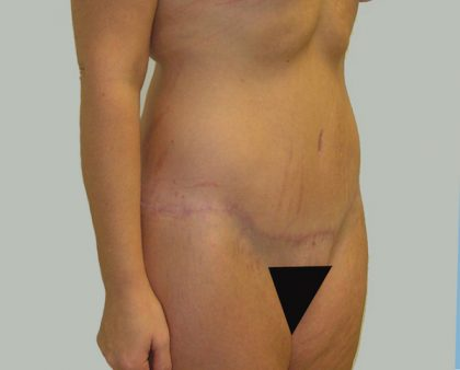 Tummy Tuck Before & After Patient #712