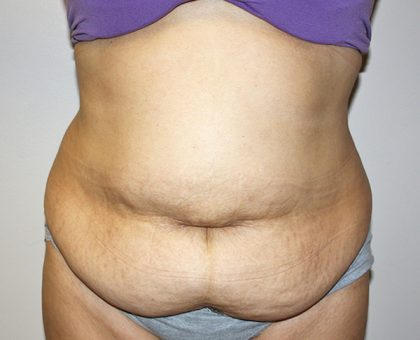 Tummy Tuck Before & After Patient #528