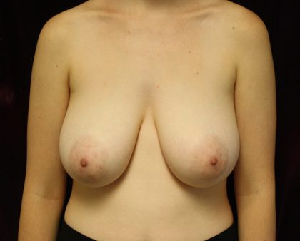 Breast Reduction Before & After Patient #912