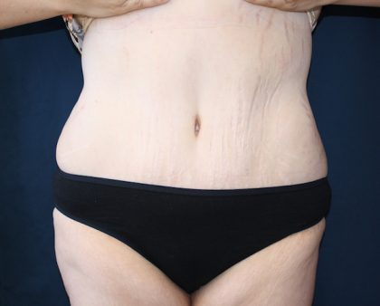 Major Weight Loss Tummy Tuck Before & After Patient #1240