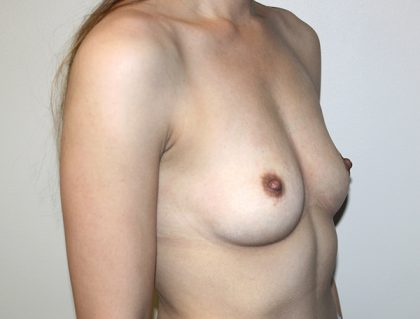 Breast Augmentation Before & After Patient #1530