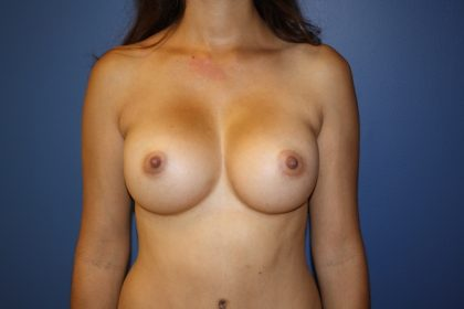 Breast Augmentation Before & After Patient #1649