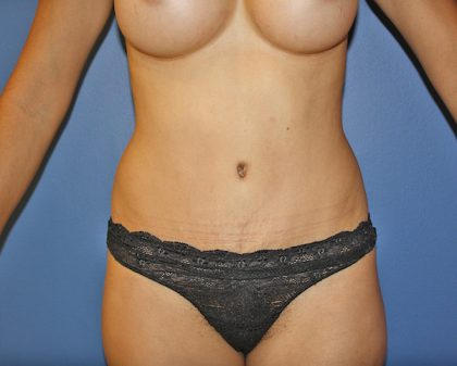 Tummy Tuck Before & After Patient #591