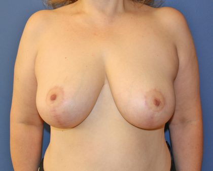 Breast Reduction Before & After Patient #982
