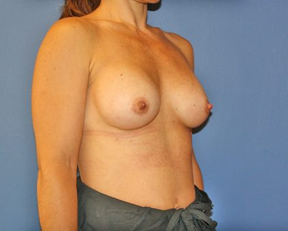 Breast Augmentation Before & After Patient #1628
