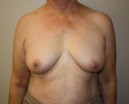 Breast Augmentation Before & After Patient #1667