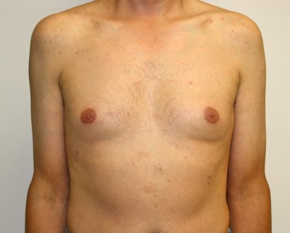 Male Breast Reduction Before & After Patient #1254