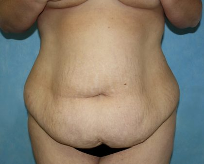 Tummy Tuck Before & After Patient #677