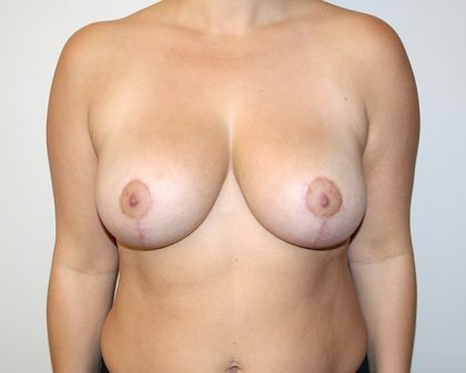 Breast Reduction Before & After Patient #891