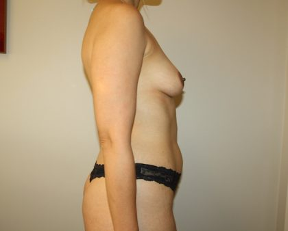 Tummy Tuck Before & After Patient #684