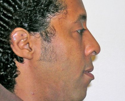 Rhinoplasty Before & After Patient #1340