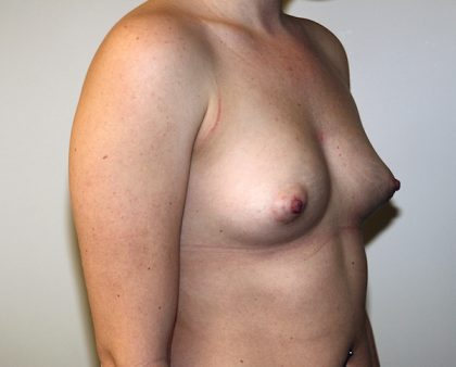 Breast Augmentation Before & After Patient #1730