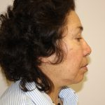 Facelift Before & After Patient #1066