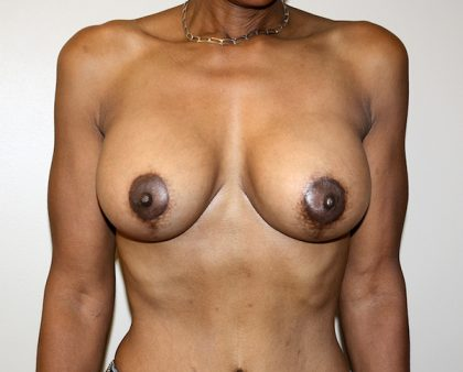 Breast Lift Before & After Patient #862