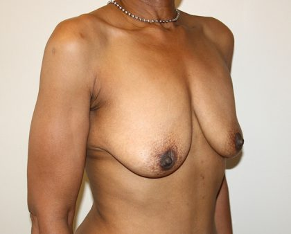 Breast Augmentation Before & After Patient #1688