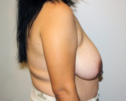 Breast Reduction Before & After Patient #996